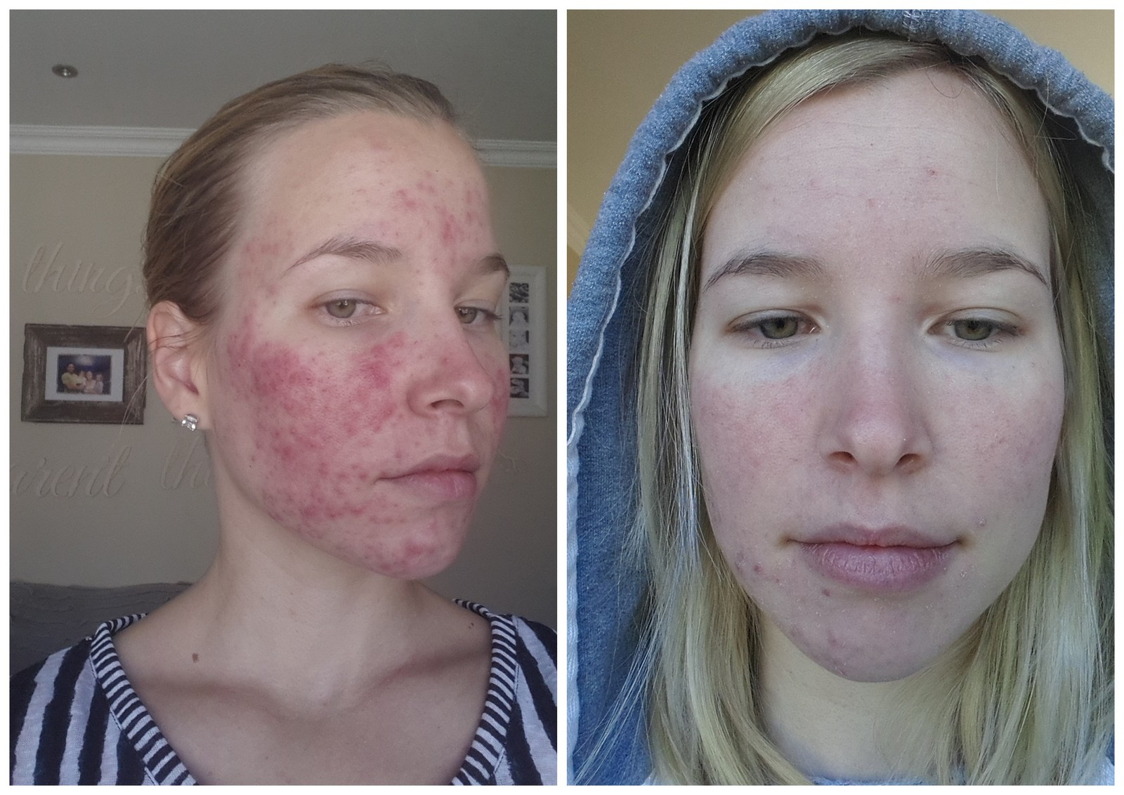 A Roaccutane/Oratane Update - Week 4 - 3 Kids, 2 Dogs and