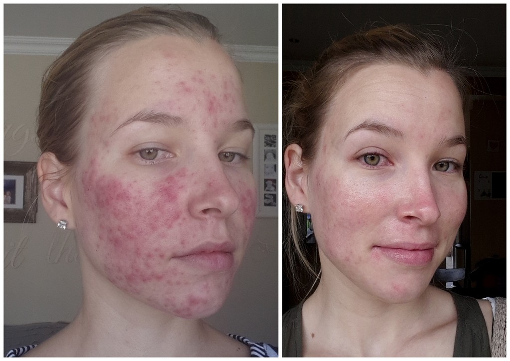 Roaccutane You Beauty - Week 14 Update - 3 Kids, 2 Dogs